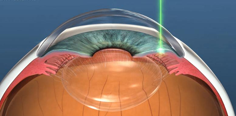 Diagram showing a YAG laser peripheral iridotomy to treat narrow angles or angle closure glaucomaDiagram showing a YAG laser peripheral iridotomy to treat narrow angles or angle closure glaucoma