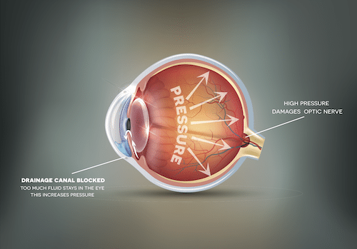 Diagram of an eye showing what happens in glaucoma