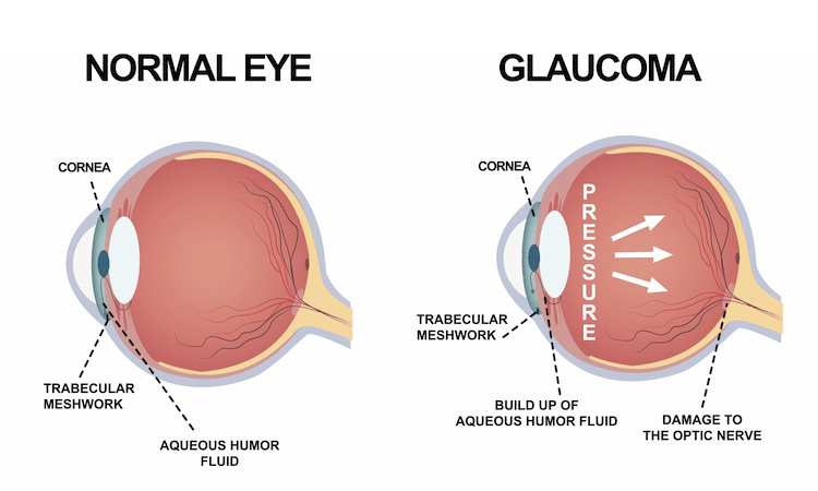Diagram comparing a normal eye and an eye with glaucoma