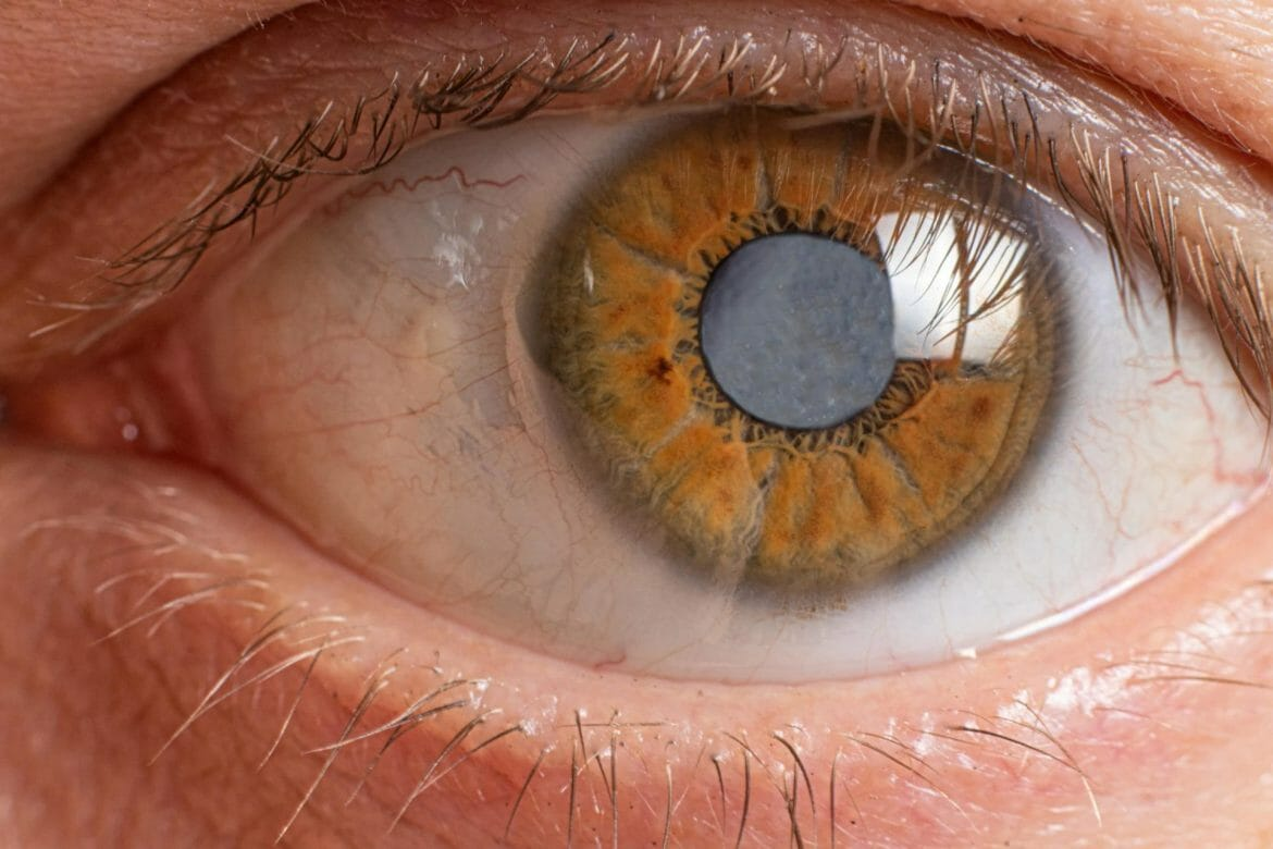 Picture of an eye with cataract