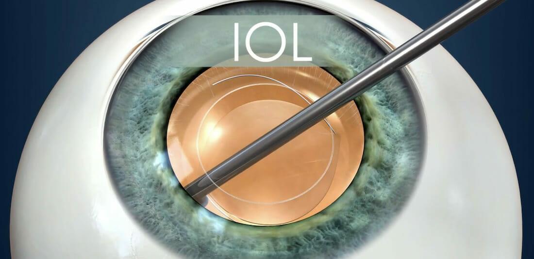 Diagram of the intraocular lens inserted inside the eye during cataract surgery