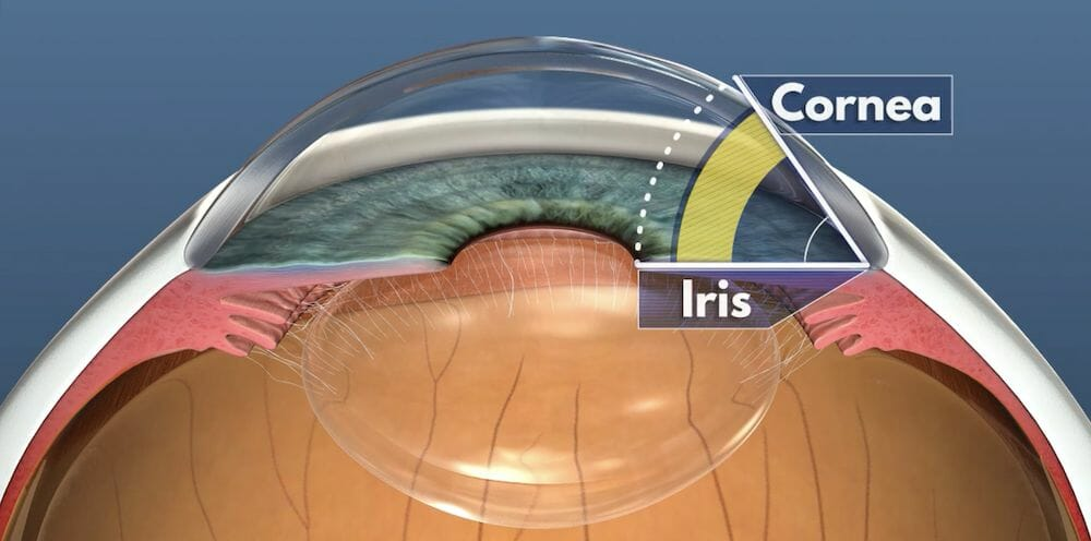 Diagram of an eye showing the angle between the iris and the cornea