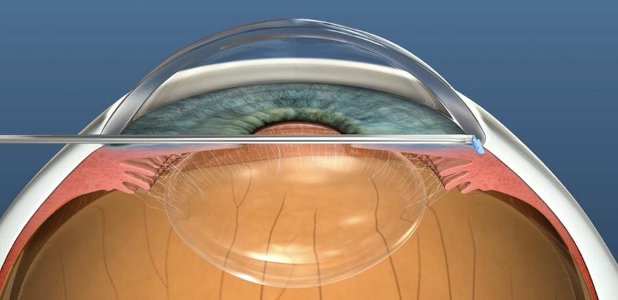 Surgery for glaucoma