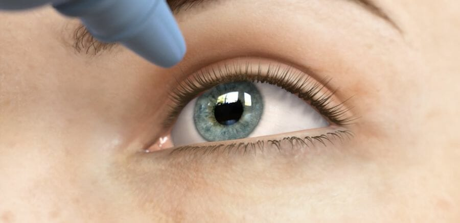 An eye drop being instilled for the treatment of glaucoma