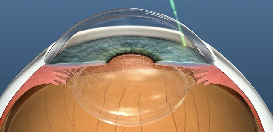 Selective laser trabeculoplasty being performed for glaucoma