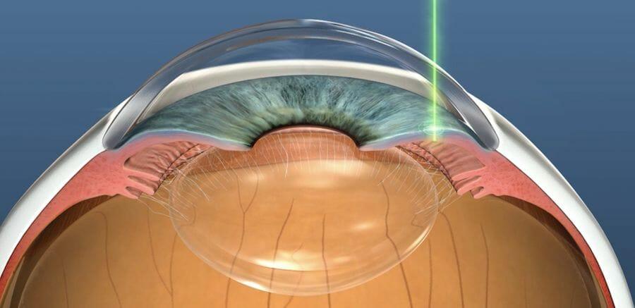 YAG laser peripheral iridotomy to treat angle-closure glaucoma