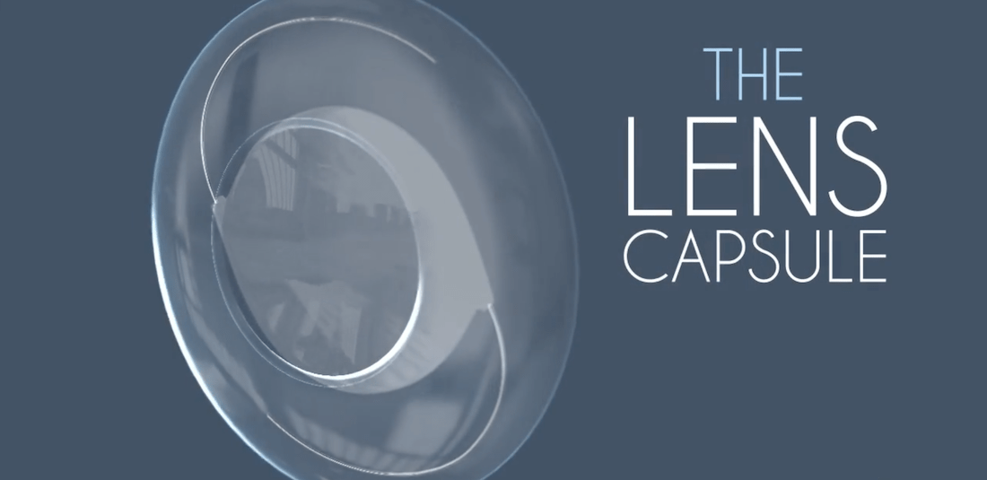 Diagram of the lens capsule